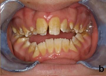 What is the most common type of dental abnormality and its cause?