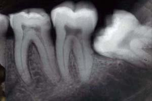 What should I do if i suspect that someone at a dental office who does xrays is actually not licensed to do so?