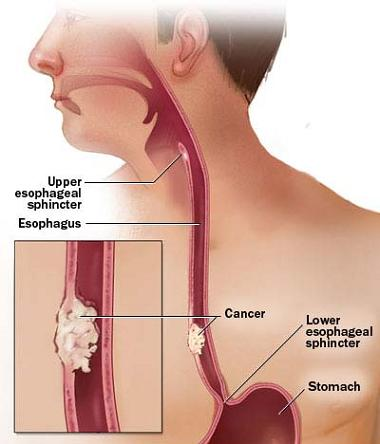 How does esophageal cancer cause back pain?