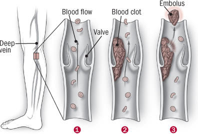 My husband had a blood clot in his leg now the valve is messed up and blood don't flow right. Is there anything he can do about this? He also has an o