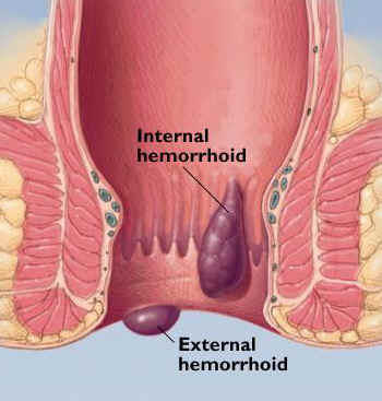 How do I know if I have hemorrhoids or an anal fissure? Will they heal on their own?