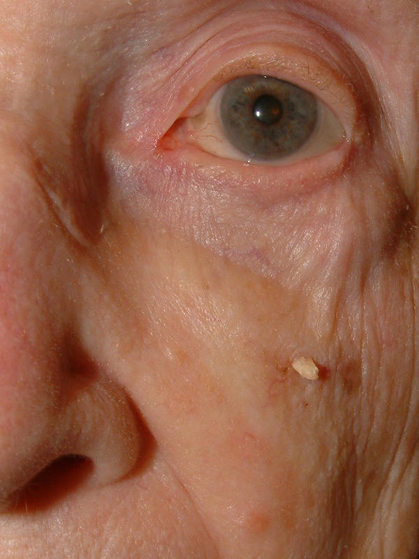 Wart On Face Flat wart on face picture - doctor answers on healthtap