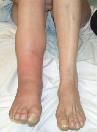 Pain in left leg after ovarian cycts lab. Surgery?