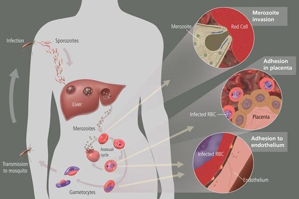 Can malaria lead to liver failure?
