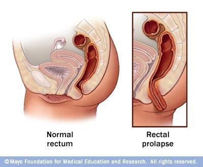 What are the symptoms of an internal prolapse? How can it be identified? I see the inner rectum when straining, is it an internal prolapse?