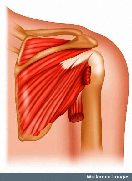 Rotator cuff hurts, should I work out or not?