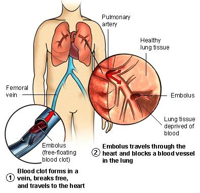 How  do you know if a clot has travelled from 1 lung to another?