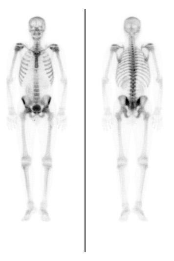 What's a bone scan for?