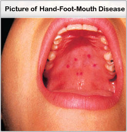 How Long Does Hand Foot And Mouth Last 49