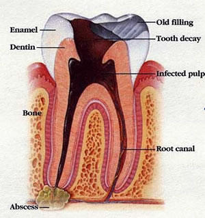 What are the warning signs that a tooth infection has spread?