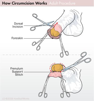 What can I do if I have an incomplete circumcision?
