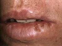 Is it possible to make a cold sore go away over night?