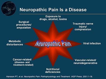 Can stress cause neuropathic pain?