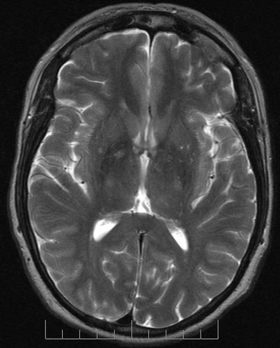 What might cause MRI=mild lateral compression of midbrain? Nothing else noted as far as masses etc, but image is slightly obstructed by VA Shunt artifact fitted  for presumed aytipical-Idiopthc IH. Does comp cause symptoms?