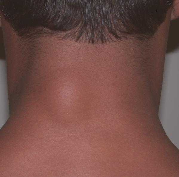 I have a lump on the back of my neck below the hairline. It doesn't hurt I just came across it. Is it a lymph node or could it be a tumor? I do smoke..