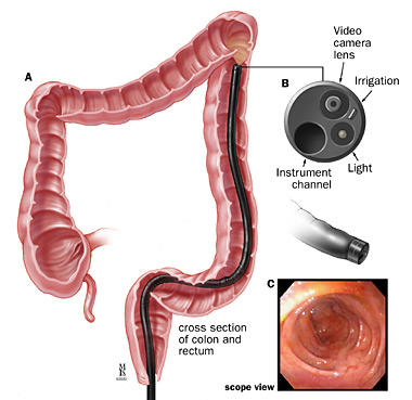 What is the definition or description of: flexible sigmoidoscopy?