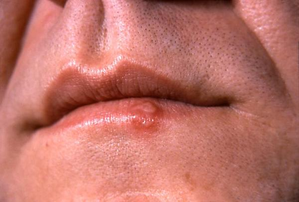I have a couple white spots on my top lip of my mouth. They are not sore or raised. What are they?