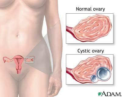 Is an ovarian cyst dangerous if it stays for more than 1 year inside my body?