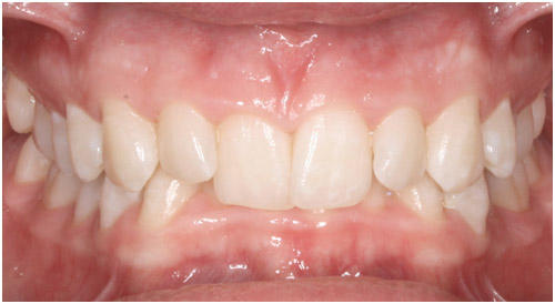 What could cause my front teeth to hurt all of a sudden?