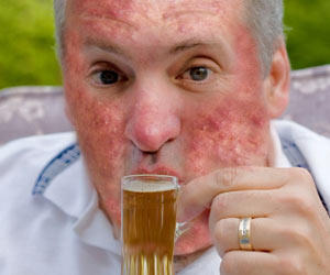 Can alcohol cause acne?