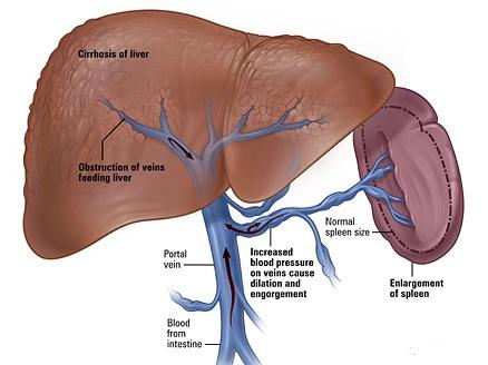 Hepatic portal vein - Learn from doctors on HealthTap