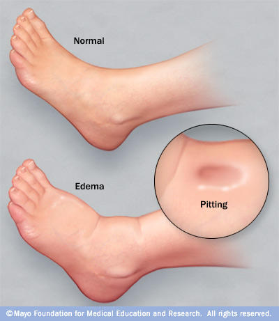 Why edema of nephrotic mainly in the face while for heart failure found in the lower limp?
