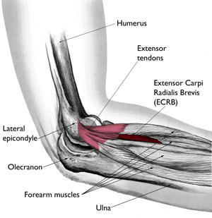 How to determine if I have torn a muscle by my elbow?