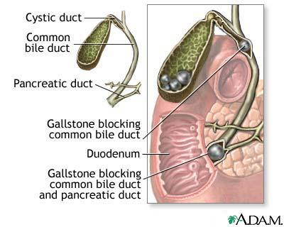 How long does it take for cholestectomy for gallbladder? How long is hospital stay?