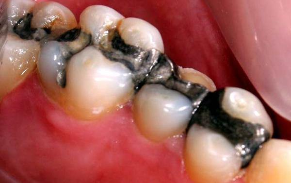 Can mercury in amalgam fillings good or bad for you?