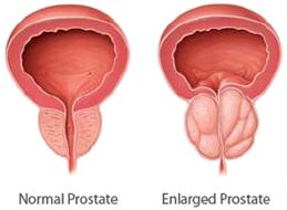 What can I expect from an enlarge prostate, sexually and mentally?