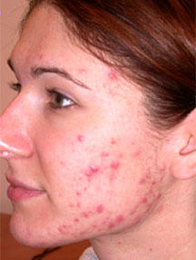 Is deriva a good medicine for acne. How long will it take to cure my acne?