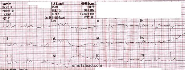 A two year old has an enlarged heart and shaded lungs. He'shad trouble breathing. What can it be and how serious is it? Please help me understand. Thanks.