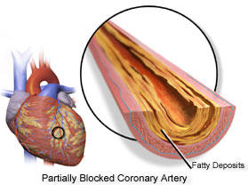 Can an echocardiogram or a chest cray see if there are any blocked arteries?