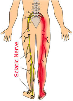 Is it possible to only experience thigh pain and no pain anywhere else in the body from a sciatic nerve injury?