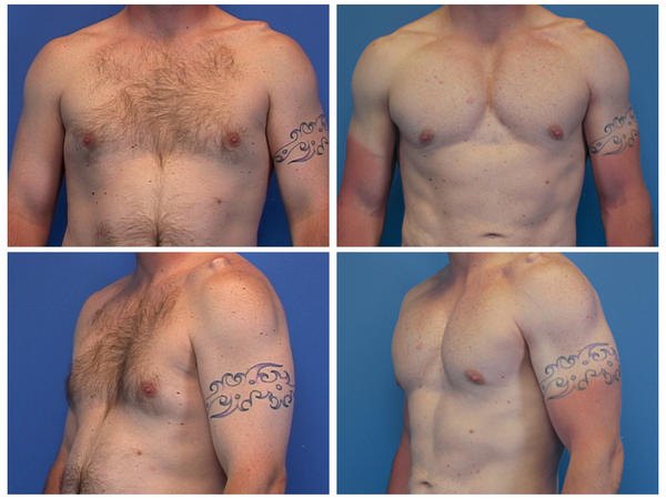 Instead getting my sexy ripped chest the hard way should I just get pec implants like those hollywood stars?