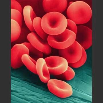 Is it normal for anemia symptoms to always appear at the same time every day?