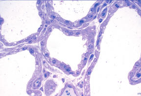 What protein is found in the connective tissue of the alveoli?