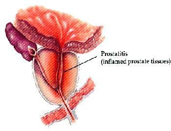 What is prostatitis and how can it be avoided?