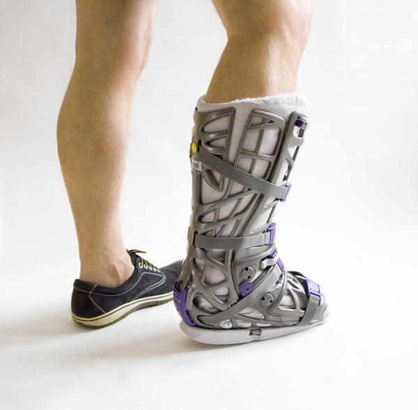 how to take care of a fractured foot