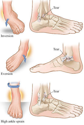 How do you tell the difference between a sprained or twisted ankle?