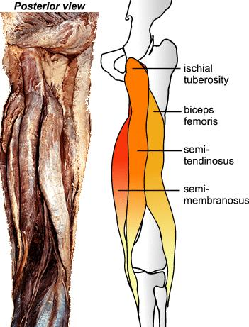 What is the difference between a hamstring and ischial tuberosity?