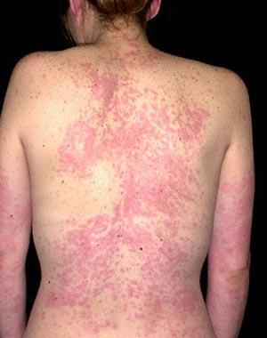 How long does it usually take an allergic reaction rash to go away?