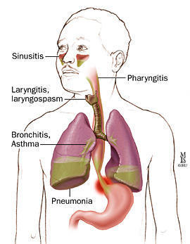 My laryngopharyngeal reflux is not responding to proton pump inhibitors, and my doctor recommended sending me to a pulmonologist. Why is this?