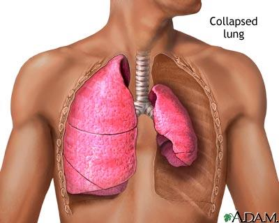 How do u know if ur lung has collapsed?