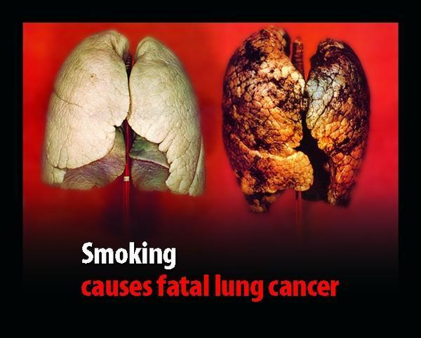Besides smoking what can cause a ?Tumor?In ?The lungs?