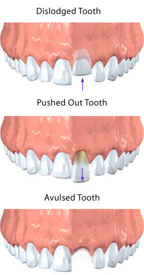 How long does it take a loose tooth caused by trauma to tighten?