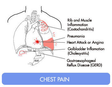 How do I tell the difference between chest pain from a hernia and pain from a heart attack?