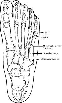 How do you i if my 5th metatarsal is fractured?