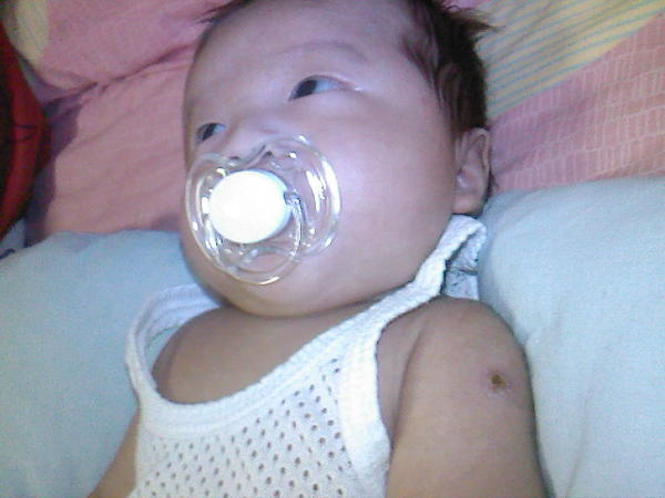 My baby just had BCG vaccine, how to make sure that my baby already done BCG immunization.