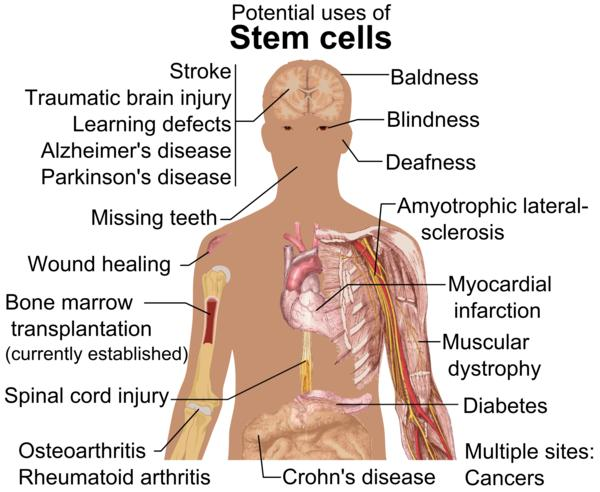 Is there any stem cell therapy that can help people with bronciectasis caused by TB  ?